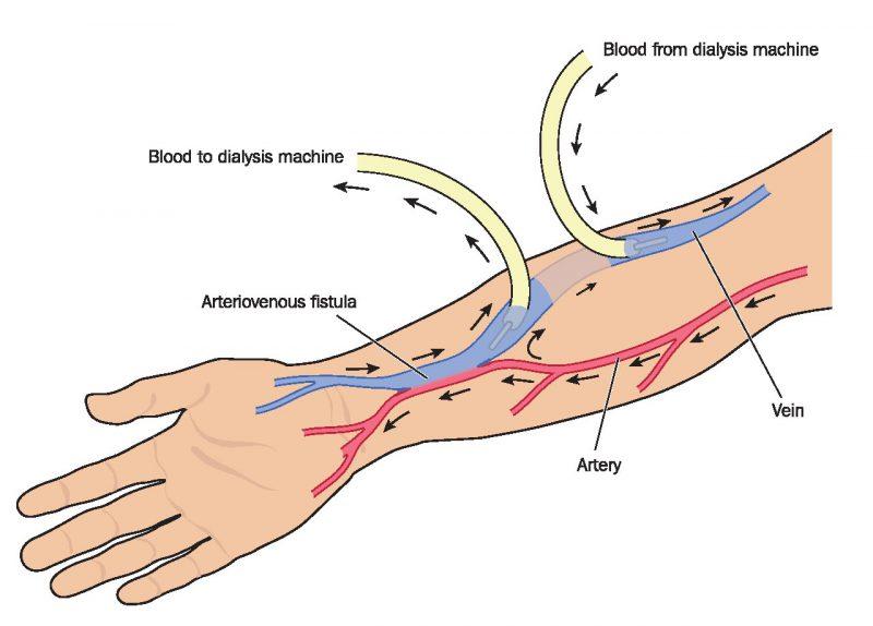 Dialysis fig 1 AVF